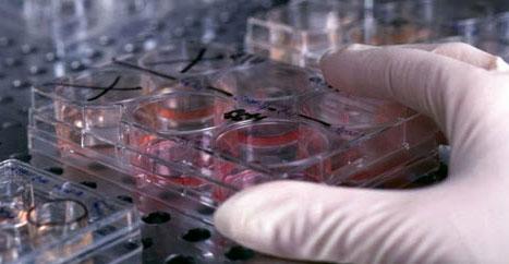 анализ на аллергены антибиотики